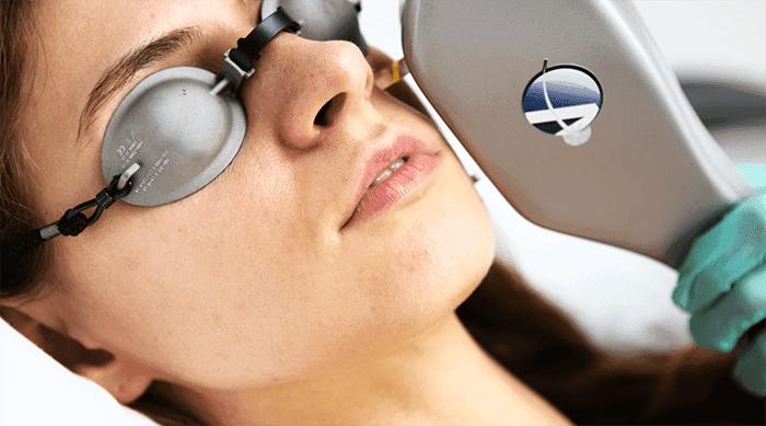 Facial Laser Treatment