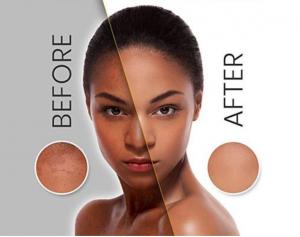 Revitol Skin Brightener Review Our Verdict For This Cream The